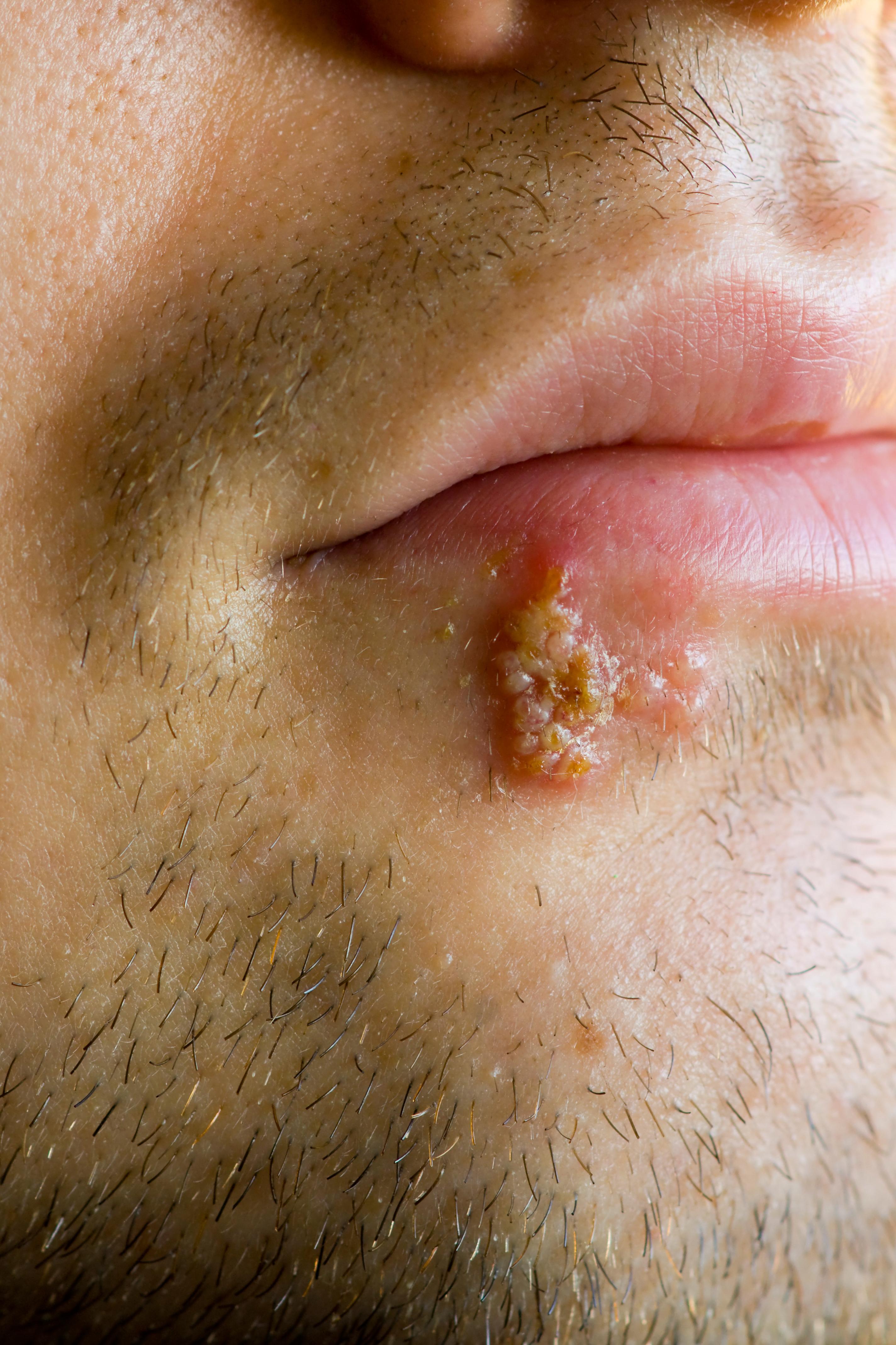 cold sore symptoms celiac disease